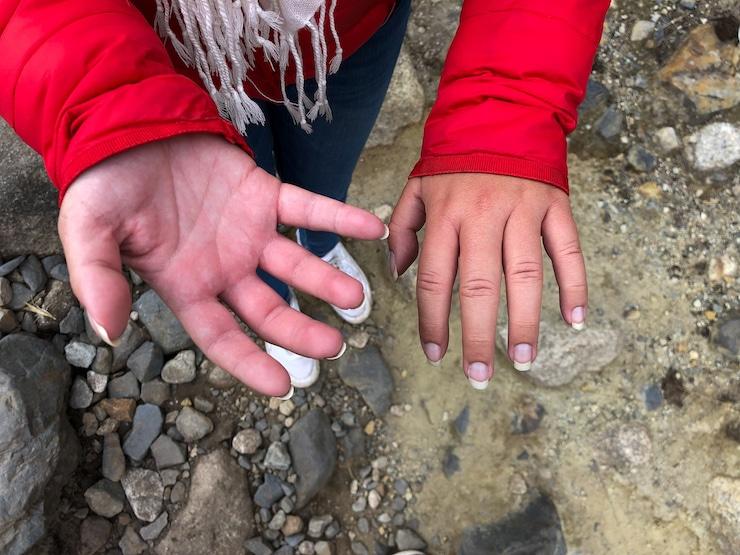 Höhenkrankheit geschwollene Hände